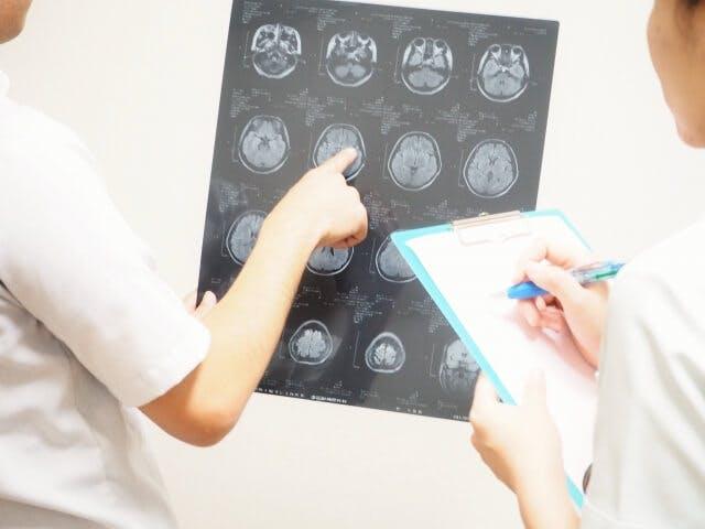 看護師が脳神経外科へ転職する場合のメリット・デメリット